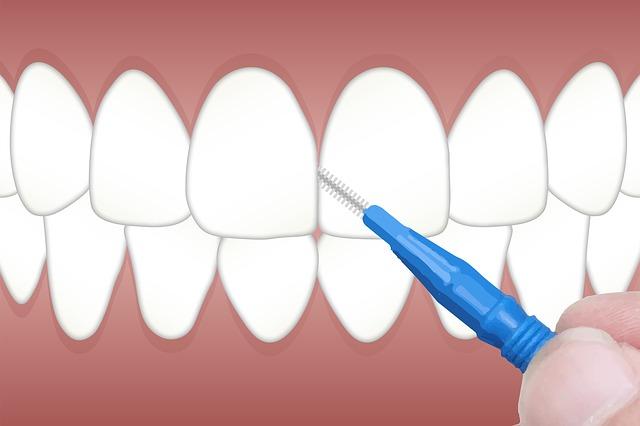 ¿Para que sirven los cepillos interproximales  o interdentales?