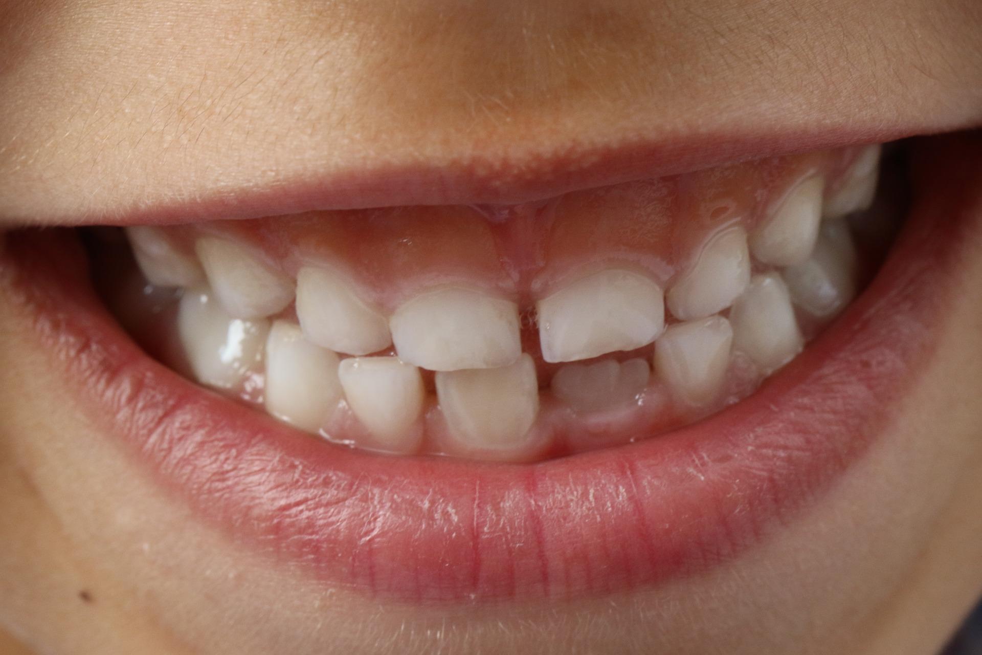 Odontología infantil dientes de leche