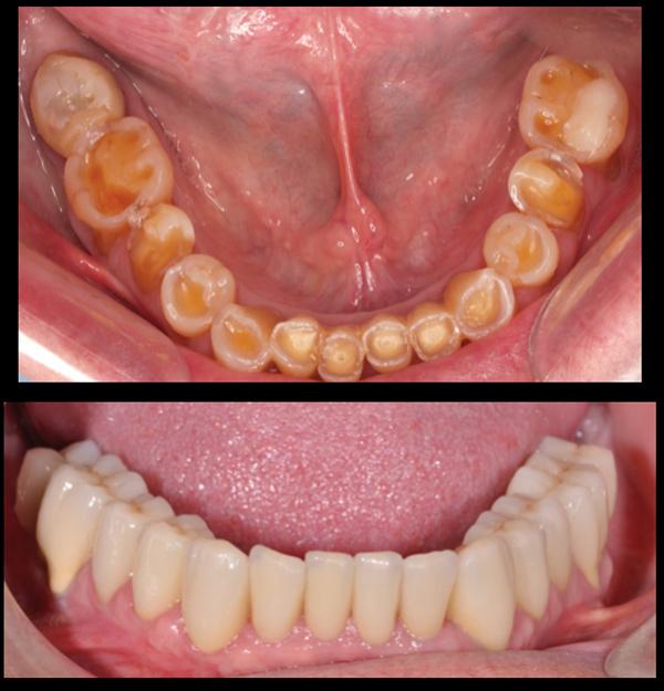 Desgastes dentales